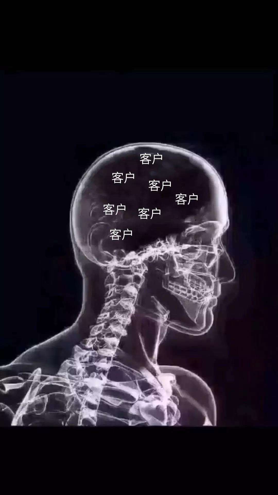 抖音套路:今天脑子疼,脑部ct图图片